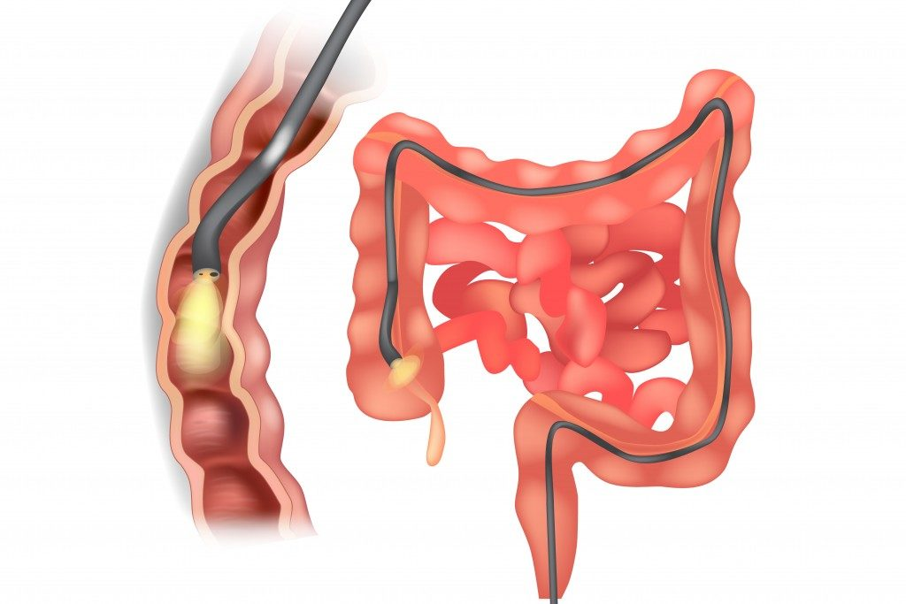 Colonoscopy diagram